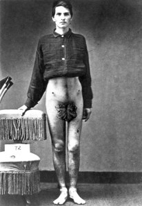 Sergeant Anson Ryder, photographed July 25, 1865, at the Army Medical Museum