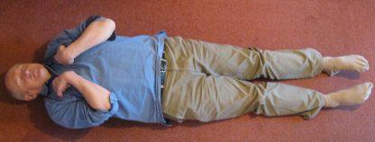 Postura típica de la decorticació (flexió anormal)