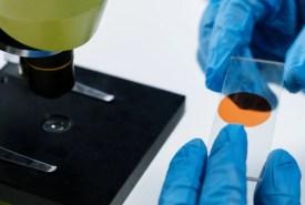 повышеный холестерин семейная гиперхолистеринемия