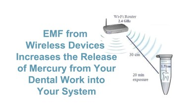 Photo of Replacing Amalgam Dental Fillings is Important for Reducing EMF Exposure – Here's the Science