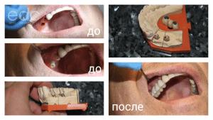 Керамика на имплантатах