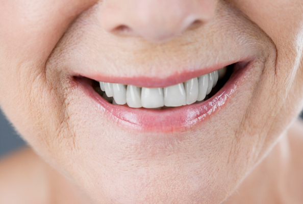 teeth generic woman