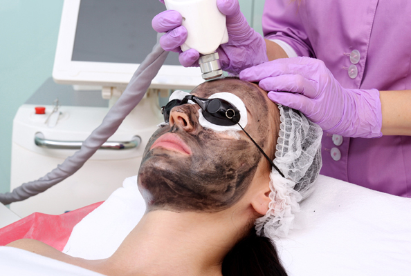 Carbon Peel nova clinic