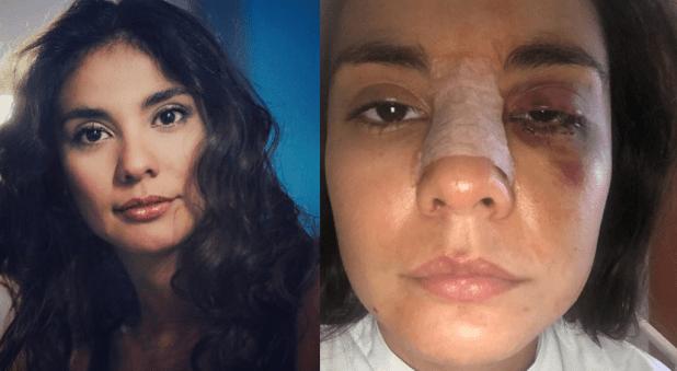 ataque Eileen Moreno indignación video emisoras unidas