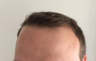Rob's hairline