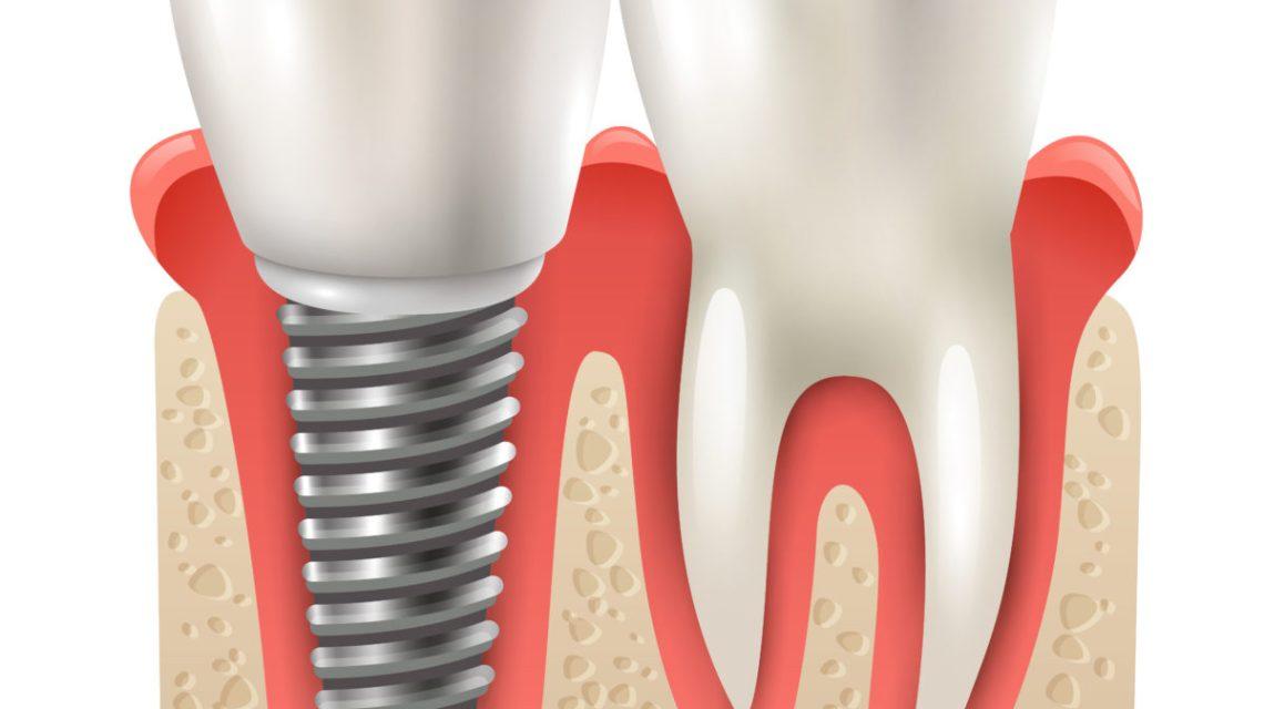 → Qual a especialidade odontológica que dá mais dinheiro?