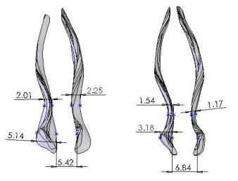 nasal valve1