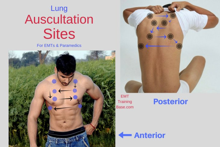 Lung Auscultation Sites for EMT & Paramedics