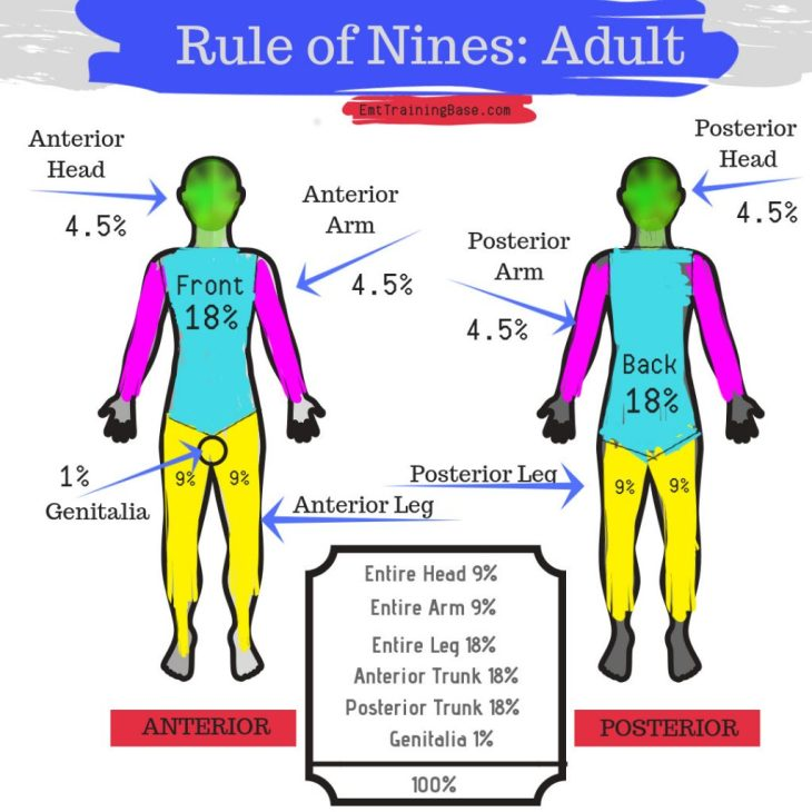 Rule of Nines Adult Image with percentages