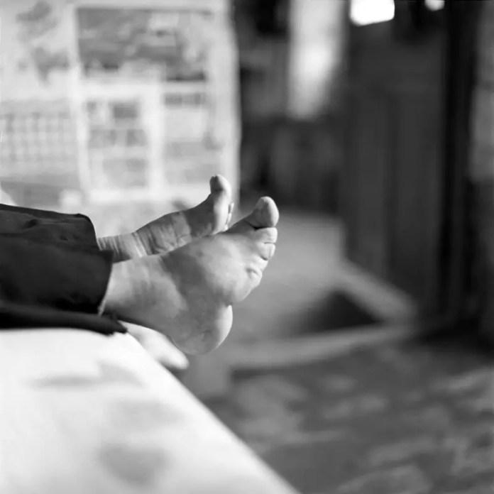 Bound Feet - Zhang Yun Ying