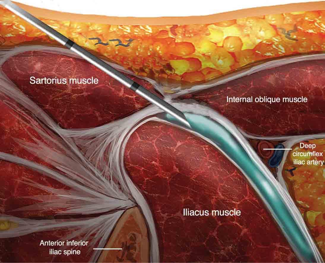 fascia iliaca block