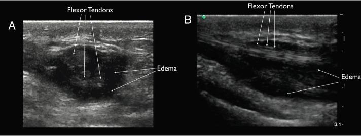 ultrasound flexor tenosynovitis