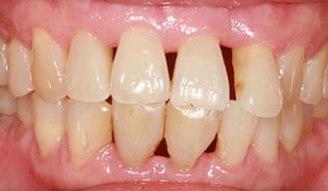 https://www.google.com/url?sa=i&rct=j&q=&esrc=s&source=images&cd=&cad=rja&uact=8&ved=0ahUKEwjQy8b2w__RAhUEQCYKHb8_ArUQjRwIBw&url=http%3A%2F%2Foralucent.com%2Freceding-gums-causes-symptoms-treatment&bvm=bv.146094739,bs.1,d.amc&psig=AFQjCNFMm_NNPsB4BY4Ihz1VkiYRyVklvQ&ust=1486609975558469