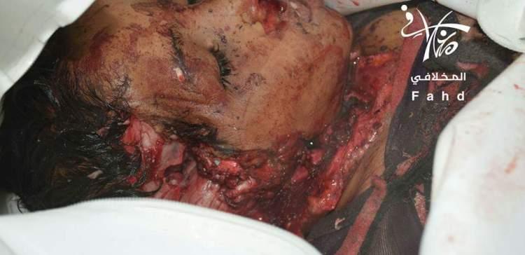 Houthi-Saleh killed, injured 2,000 Taiz children in 5 months, says Coalition