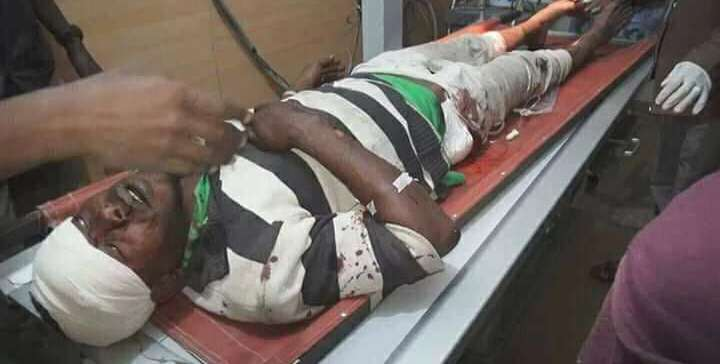 Civilian martyred, three wounded by Houthi militia rockets in Taiz