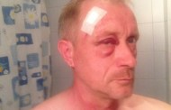First news of attack: Freelance journalist Željko Peratović attacked in his home