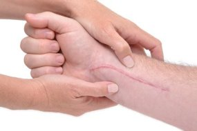 Say goodbye to scars with these naturally effective tips