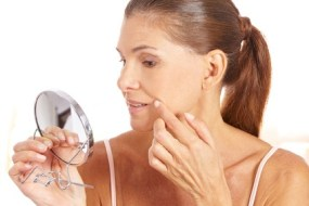 8 Natural remedies for age spots