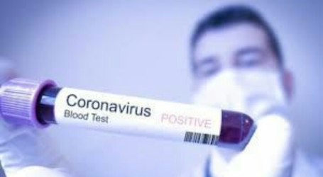 Coronavirus, Between Caution and Panic (By: Shamsi Ali)