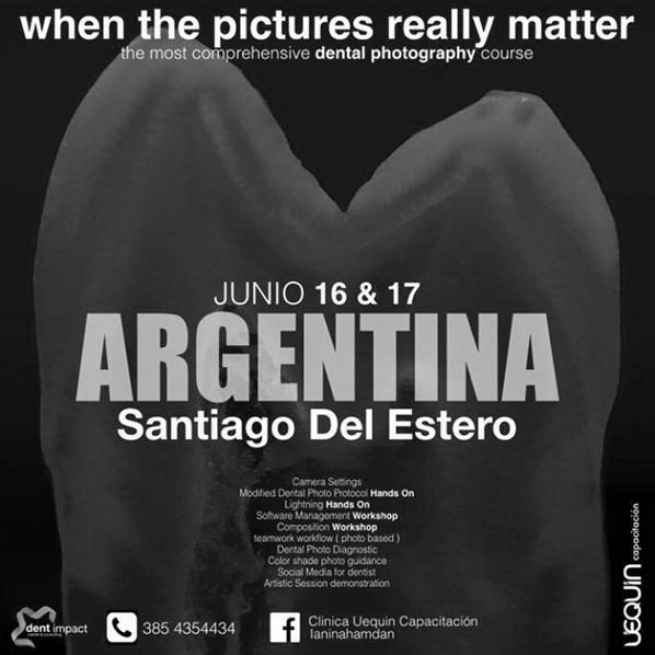 argentina-bws