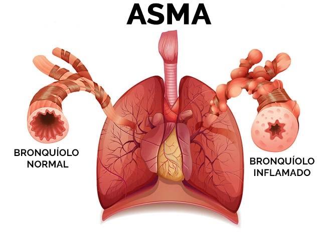 factores de riesgo del asma