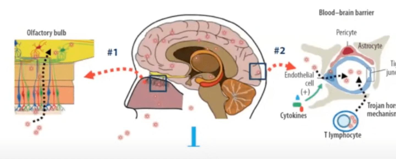 afectaciones cerebro Covid