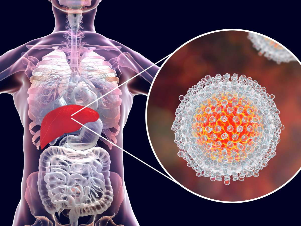 Hepatitis en México