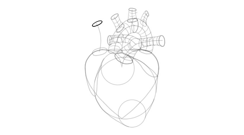 draw opening of vena cava