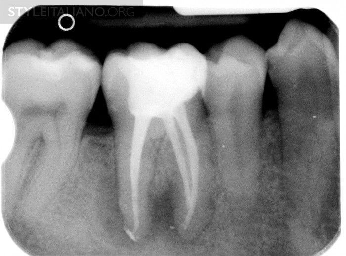Endodontic Flare Up