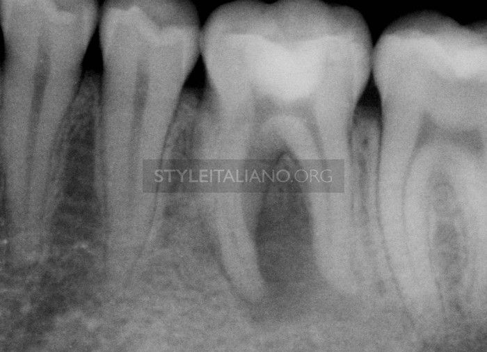 The Style Italiano Endodontics Philosophy in Practice