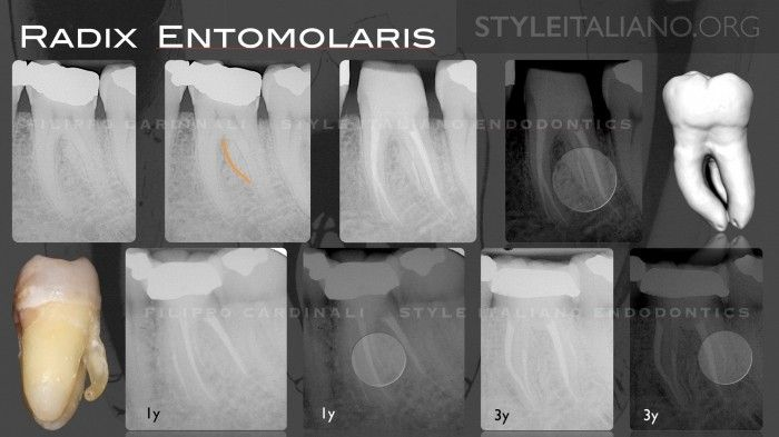Radix Entomolaris - Case series and clinical considerations