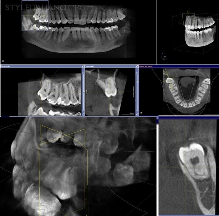 Third molars: extraction or endodontics?