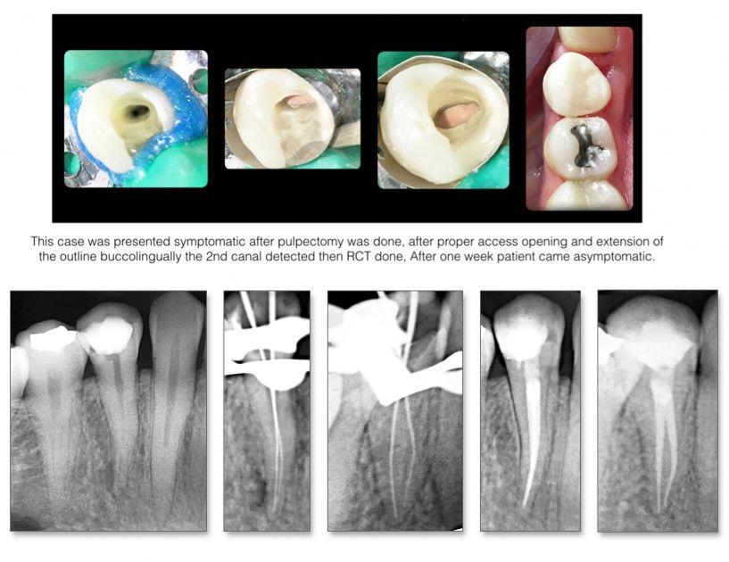 Mandibular Premolars: Teeth not to underestimate