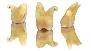 Molars  anatomy pt1: upper second molar