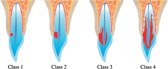 cervical resorption classes