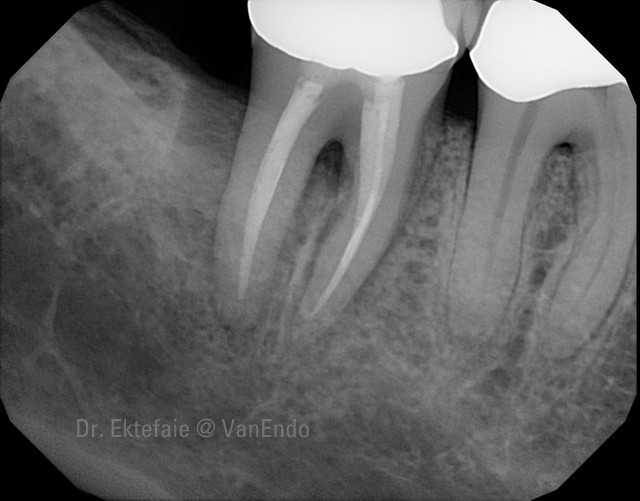 root fracture x-ray