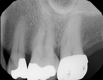 a cracked tooth