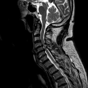 МРТ: тяжелые дегенеративные сужения (стеноз) позвоночного канала поясничного отдела в нескольких сегментах