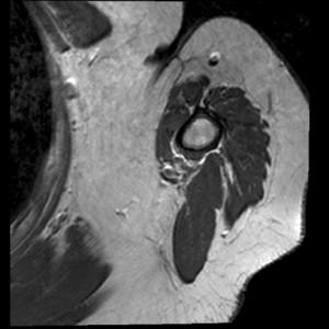 МРТ: состояние после удаления опухоли