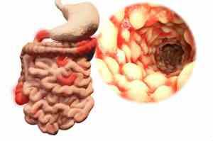 morbo di crohn