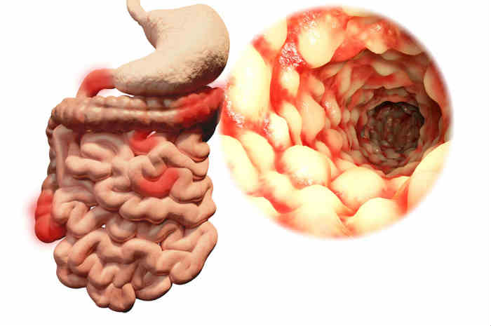 Types: morbo di Crohn