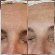 Energy Zone Wellness Center Before and After HydraFacial