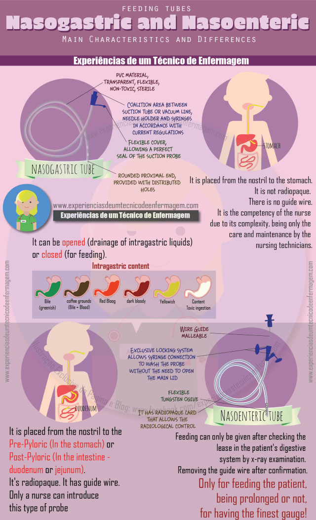 Feeding Tubes Nasogastric and Nasoenteric