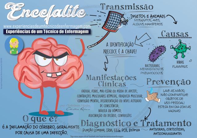 Encefalite