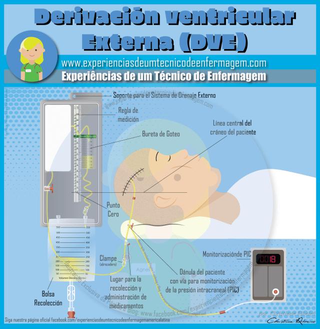 Derivación Ventricular