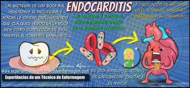 Endocarditis