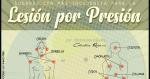 Locales más Comunes para Lesiones por Presión