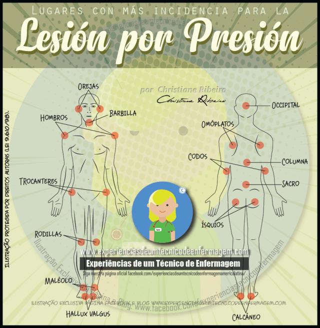 Lesión por Presión