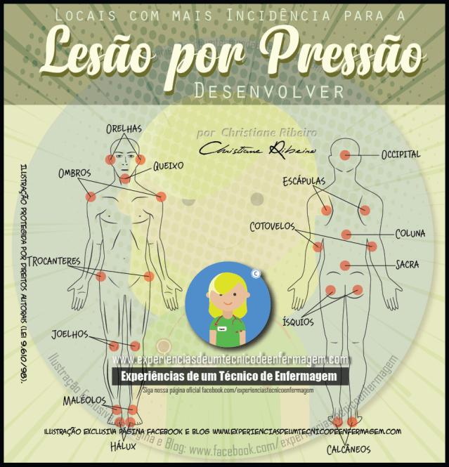 Locais comuns para aparecimento de Lesões de Pressão