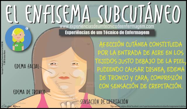Enfisema Subcutáneo